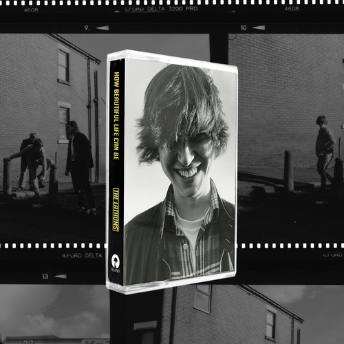 The Lathums: How Beautiful Life Can Be: Johnny Cassette Edition
